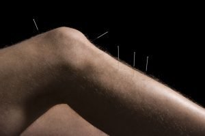 Acupuncture for knee tendonitis